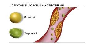 Показания к применению препарата Атероклефит