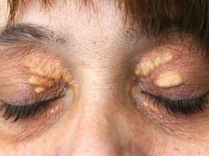 Больные гиперхолестеринемией