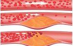 Причины, симптомы, лечение и профилактика атеросклероза