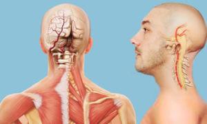 Симптомы и лечение заболеваний сосудов головы и шеи