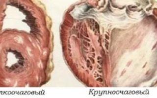 Постинфарктный кардиосклероз: симптомы, лечение и прогноз выживания