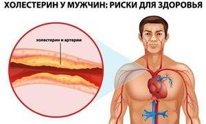 Возрастная таблица нормы холестерина в крови у мужчин