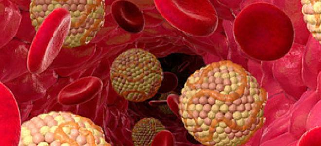 Опасный уровень содержания холестерина в составе крови