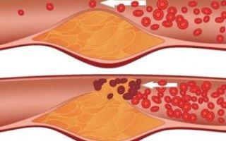 Симптомы, лечение и профилактика гиперхолестеринемии