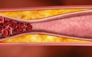 Лечение отложения холестериновых бляшек в сосудах